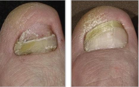 Ногтевой грибок фото и лечение