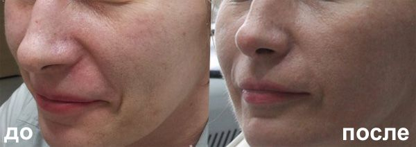 Mei SPA Studio fractional laser rejuvenation 3