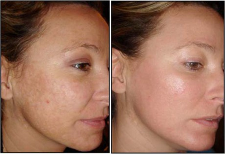 Mei SPA Studio fractional laser rejuvenation 4