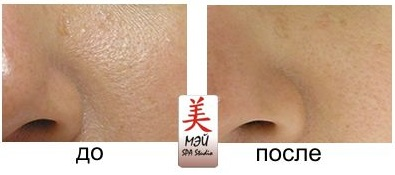 Mei SPA studio aqua peel 14