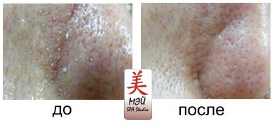 Mei SPA studio aqua peel 15