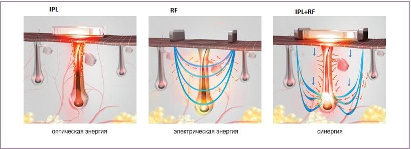 MEI SPA Studio IPL RF epiliatsia 1